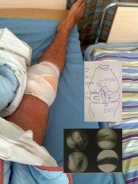 po operacji kolana